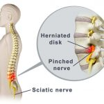 pinched_nerve_lower_back